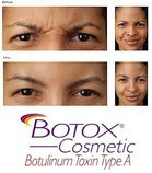 Botox (Botulinum Toxin) injections before & afters